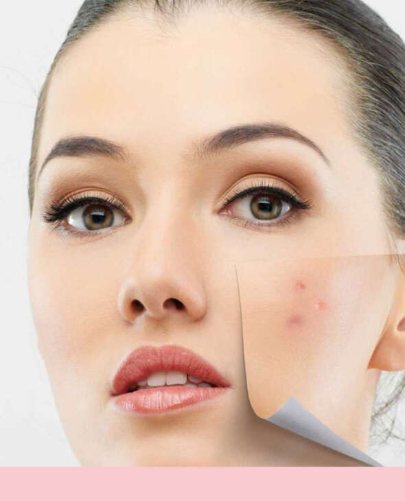 Acne Scar Removal Services